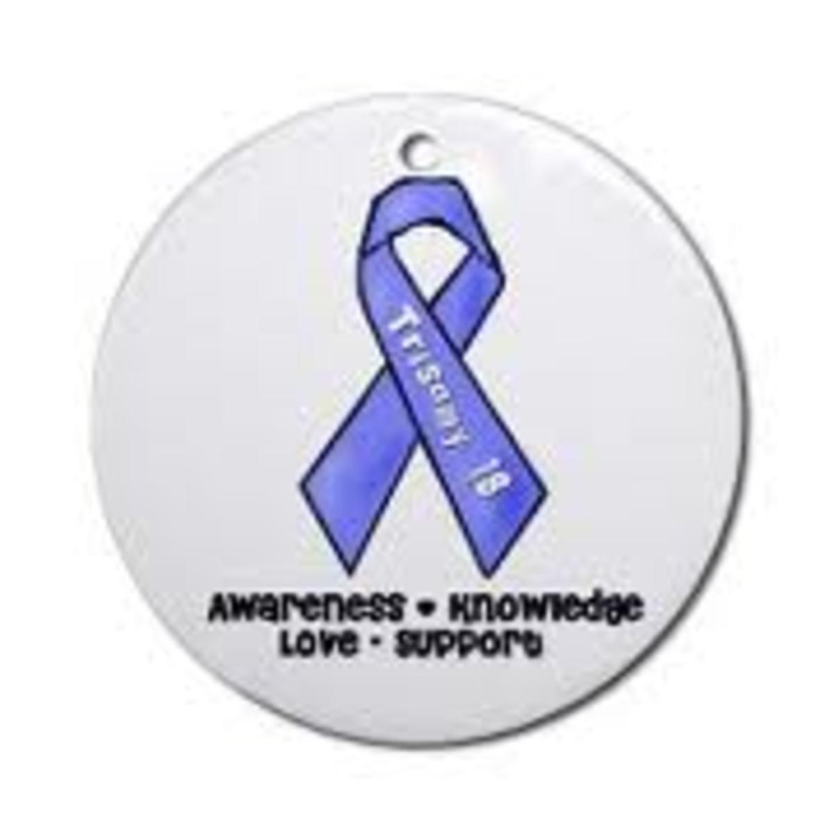 edwards-syndrome-trisomy-18