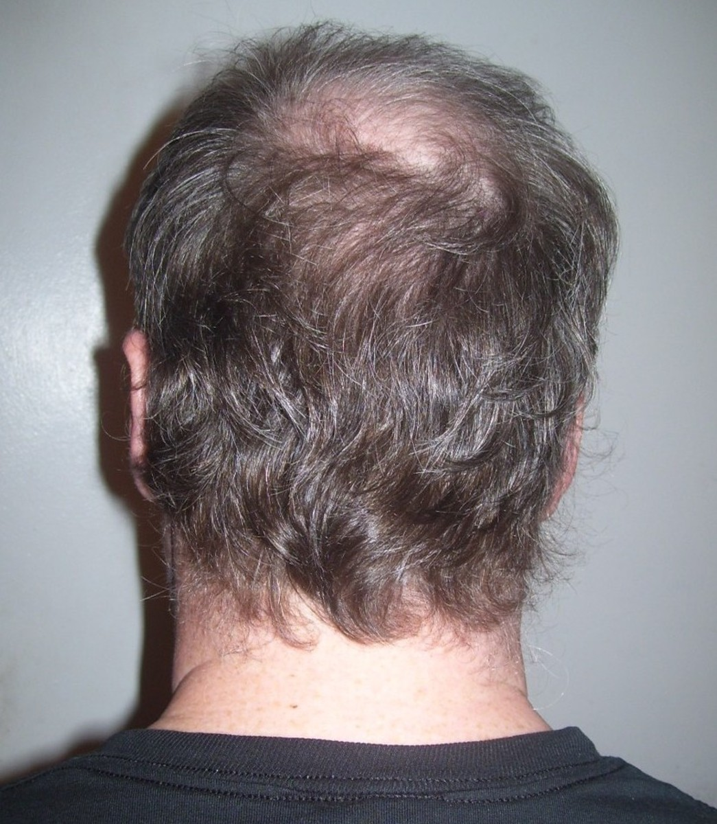 hair-loss-causes-your-bathing-habits-and-hair-products