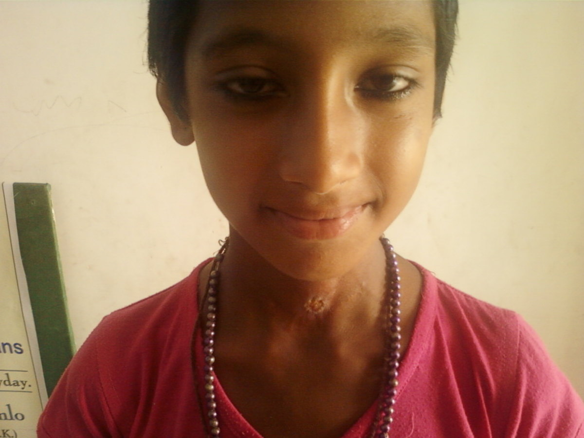 Sapna was healed by Prayer.