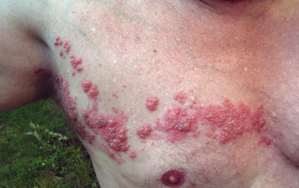 Herpes Zoster Virus Hides in Spinal Column, Shingles Symptoms and Treatment