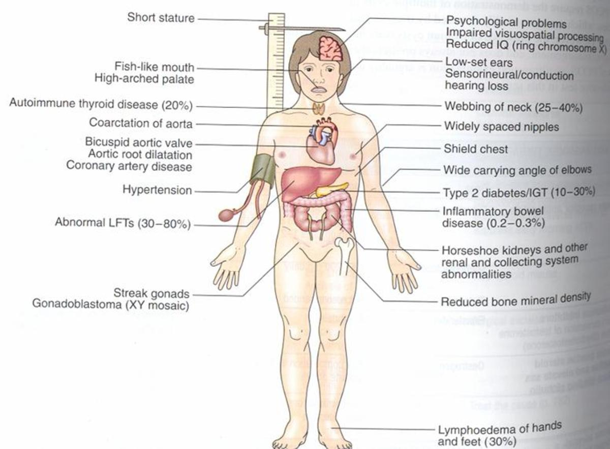 Secondary hypogonadism.