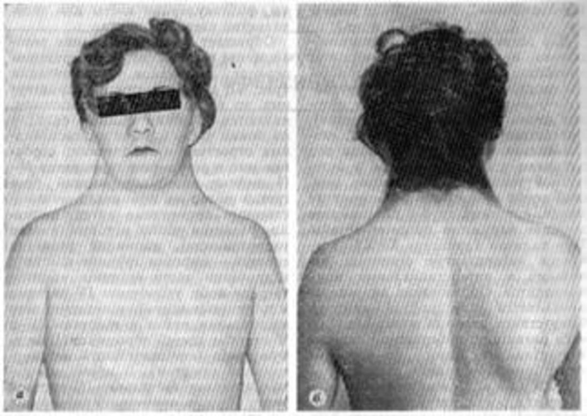 These boys have a normal XY karoytype, some of the features of Turners syndrome  (such as hypertelorism, short stature, epicanthal folds, and right  sided congenital heart disease), and various skeletal malformations. In contrast to Turners syndrome,