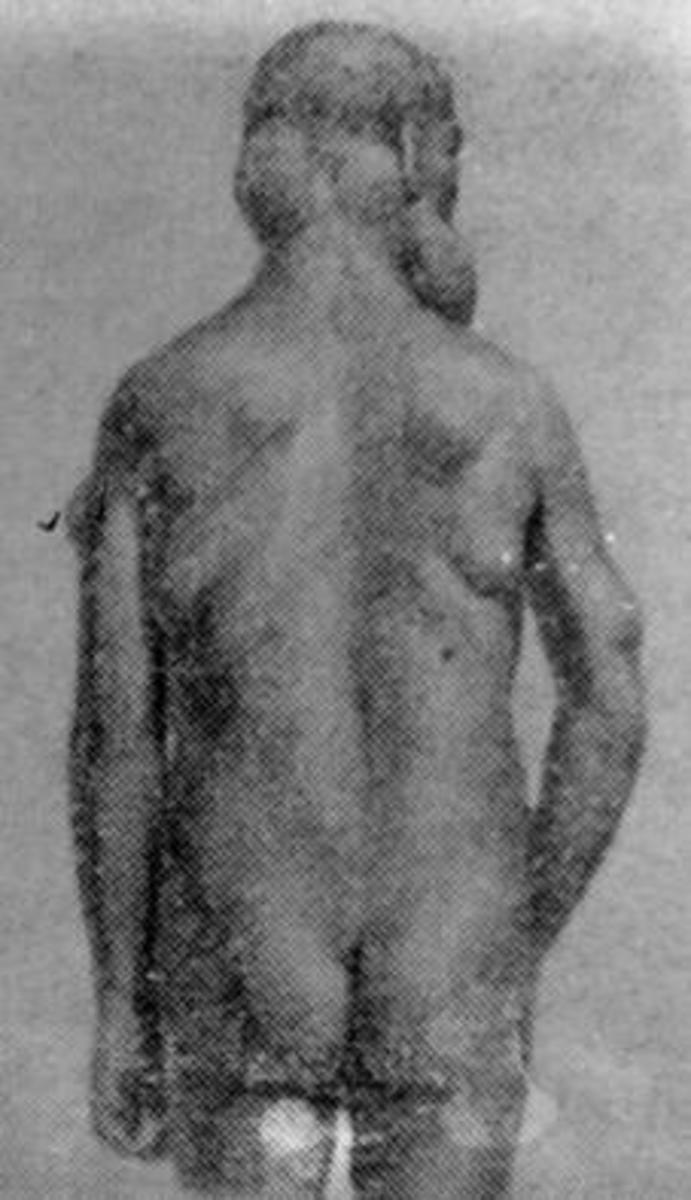 Babinsky-Frelychs disease (adipose-genital dystrophy).