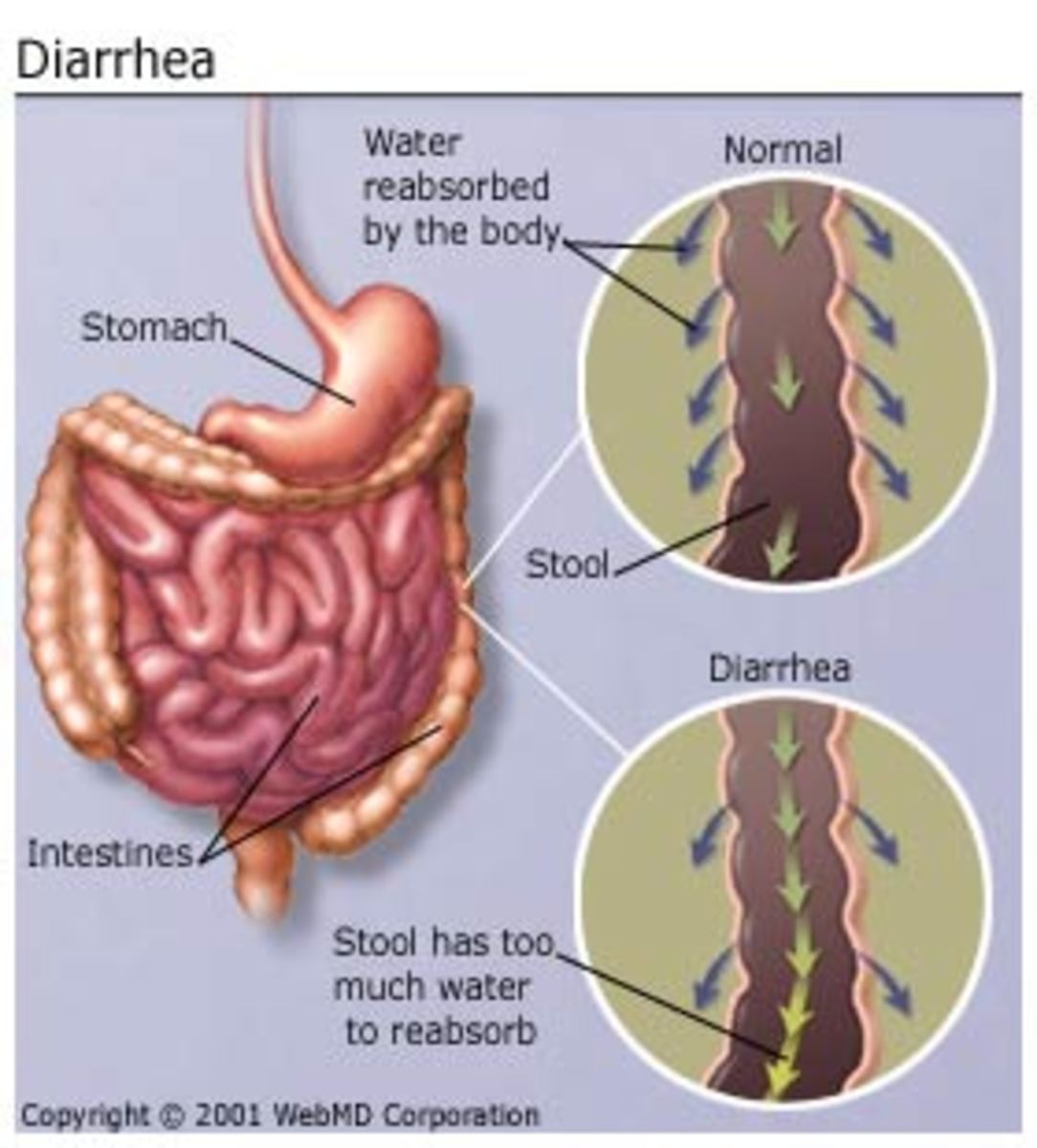Foods to avoid while having diarrhea