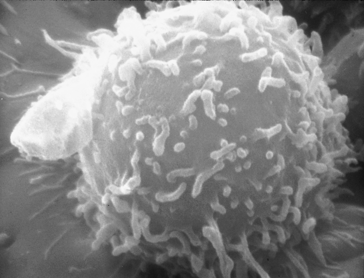 Lymphocytes have projections known as microvilli on their surface.
