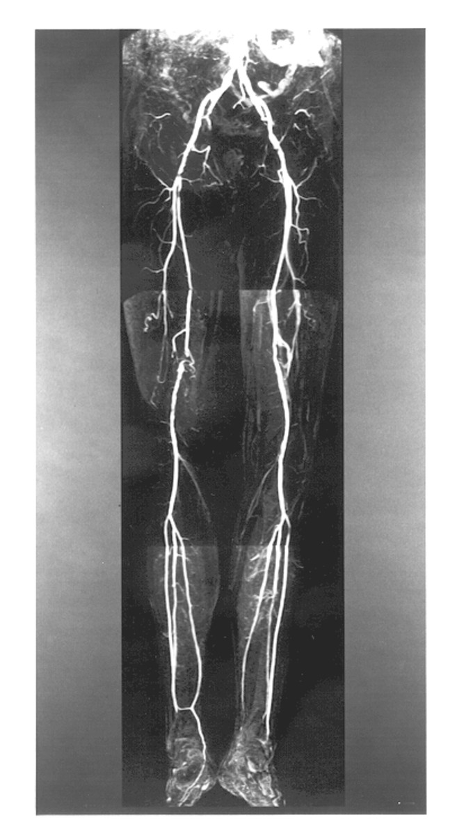 instrumental-methods-of-examination-x-rays-and-radioisotopic-diagnostics-in-urological-diseases
