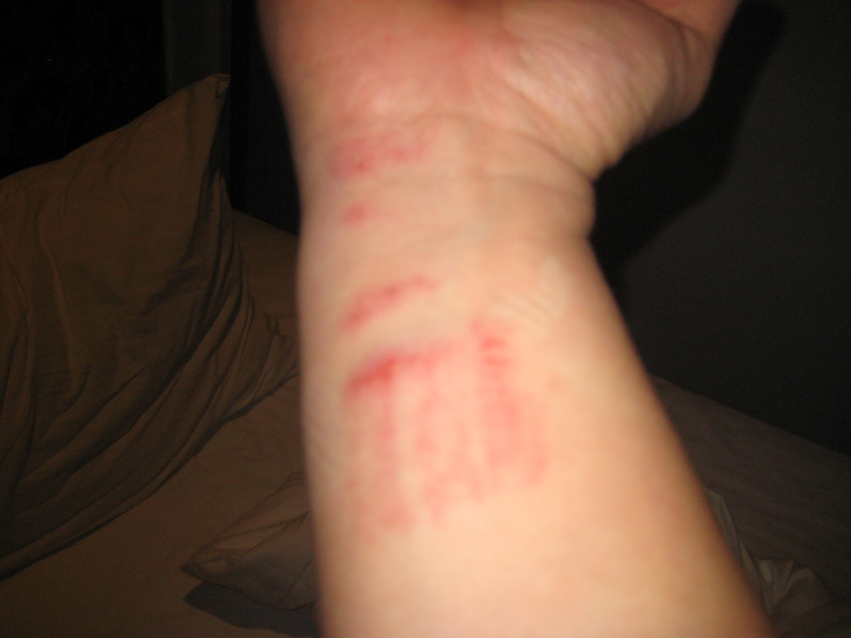 The scrape on my wrist while running away from Soi dogs in Bangkok