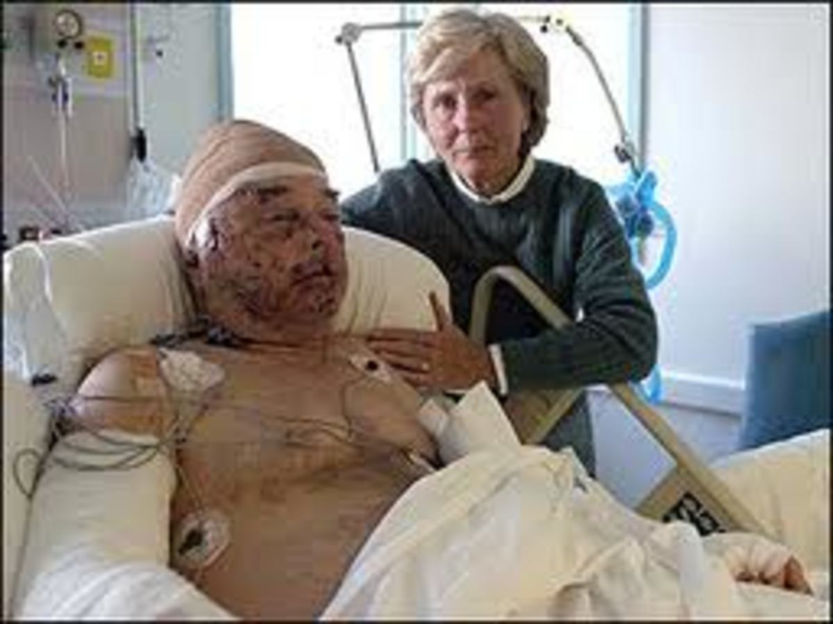 Jim Hamm in 2007, hospitalized after cougar attack. (Thank you for the use of your famous image, Mark!)