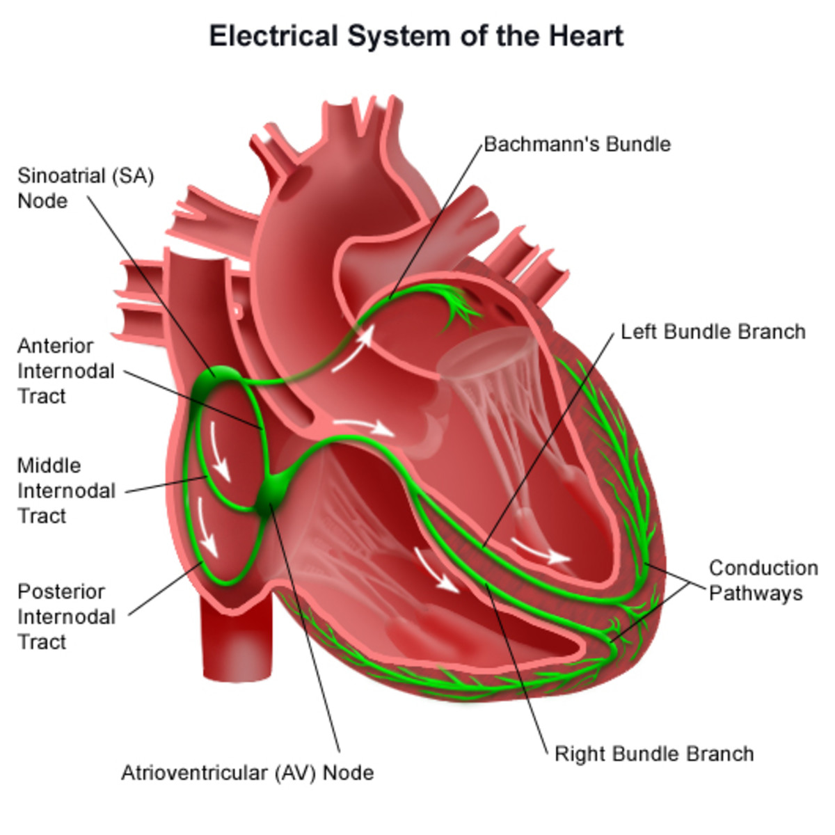 The Human Heart's Electrical Conduction System. Note the placement of the Sinatorial Node within the right atrium. And that of the Atrioventricular Node, loacated in the right ventricle.