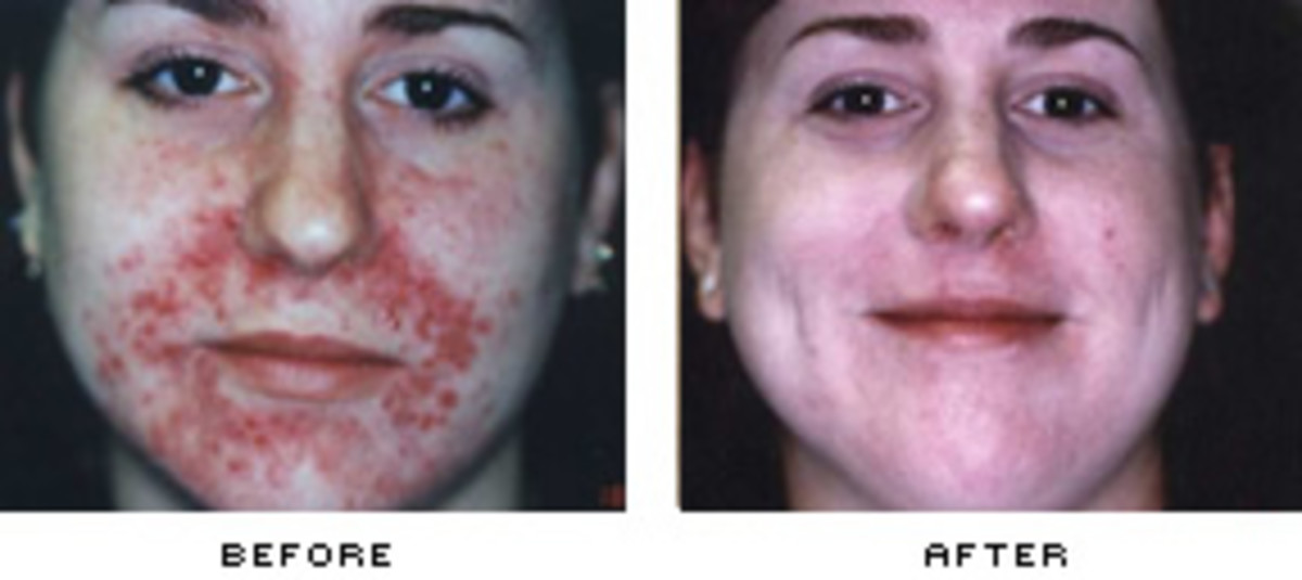 This before and after picture from drluftman.com shows the results that can be achieved with photofacial treatment