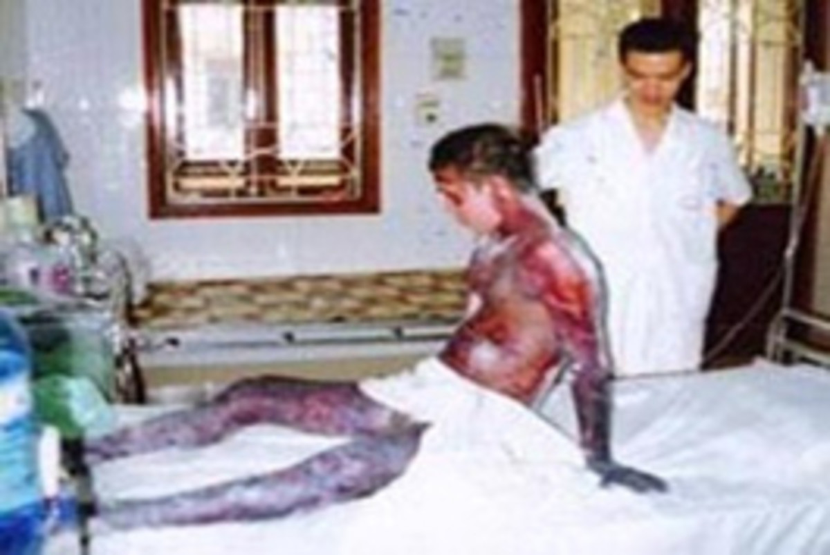 Typical effects of contaminated bile: dark patches on skin, severe jaundice, cirrhosis of the liver.