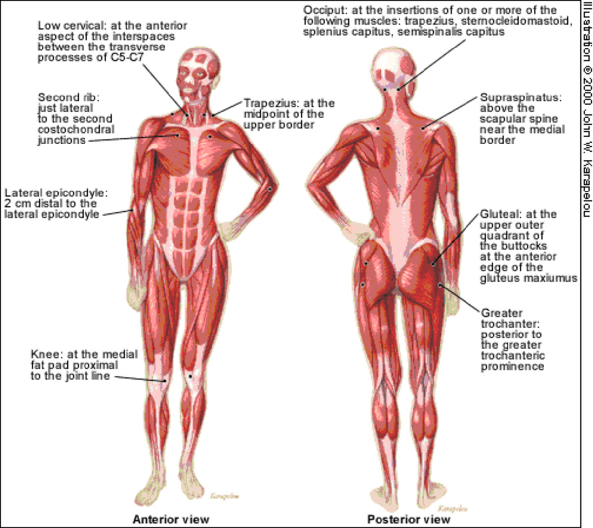 fibromyalgia pressure points diagram. Diagram Courtesy of Every Day