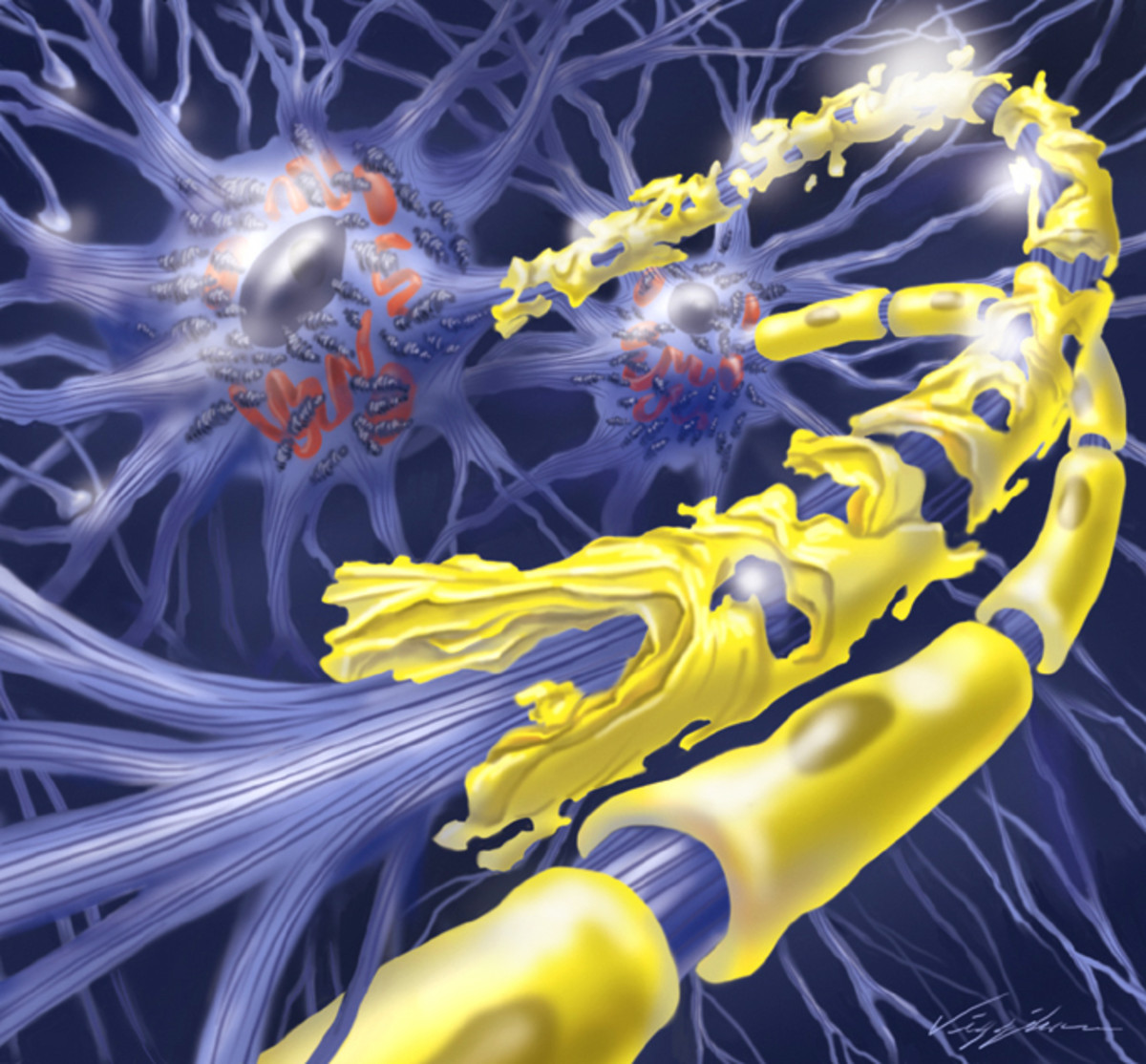 Diabetic Neuropathy Medical Illustration