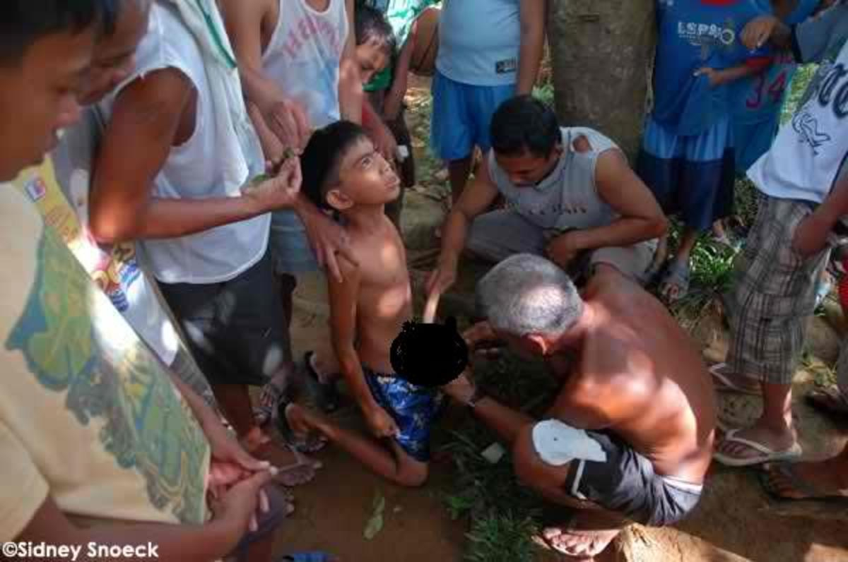 Male Circumcision in the Philippines - Why the Health department requires it