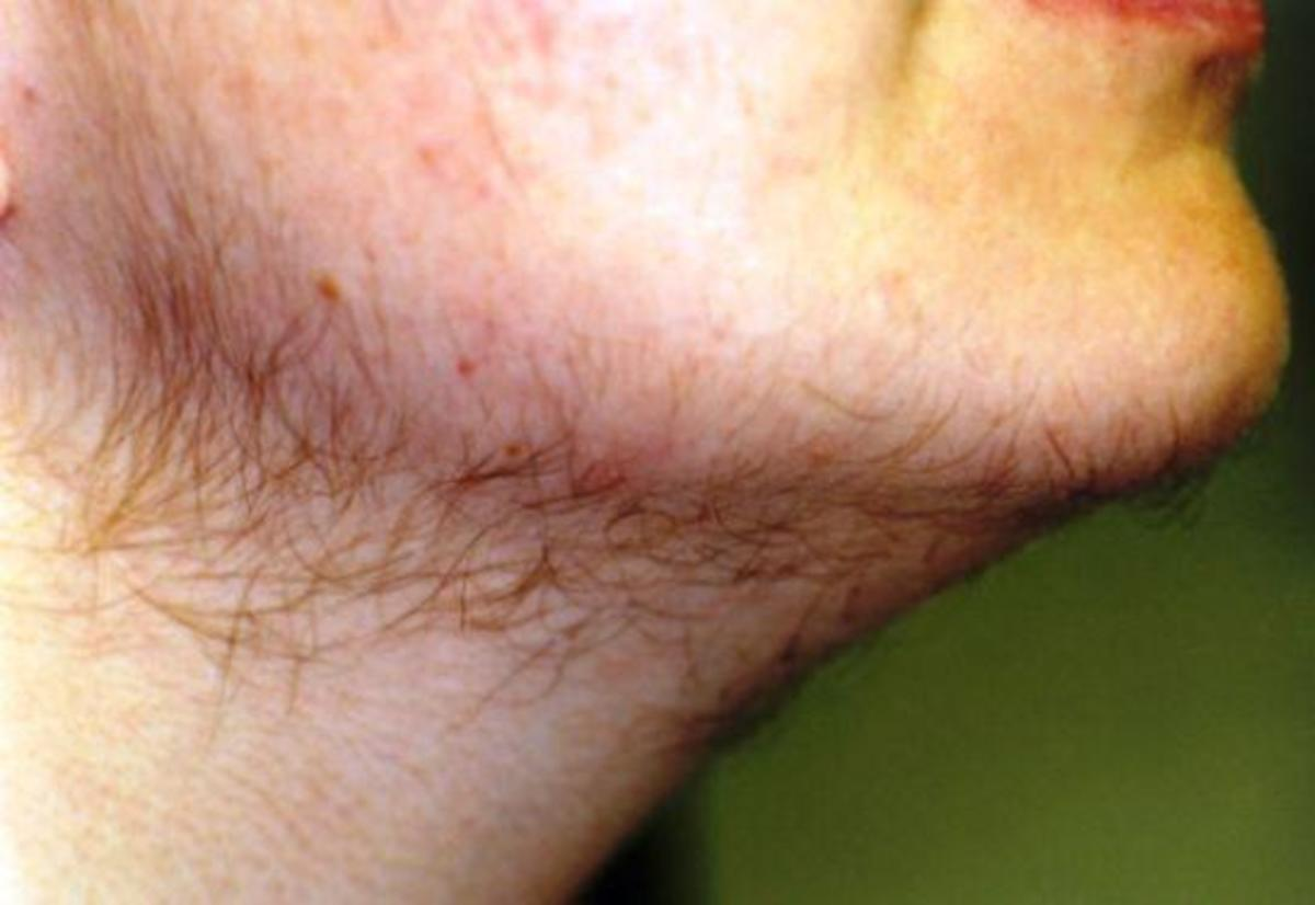 Hair on the chin and upper lip is seen in hirsutism resulting from any cause. It is the most visible (and most distressing) type of hirsutism