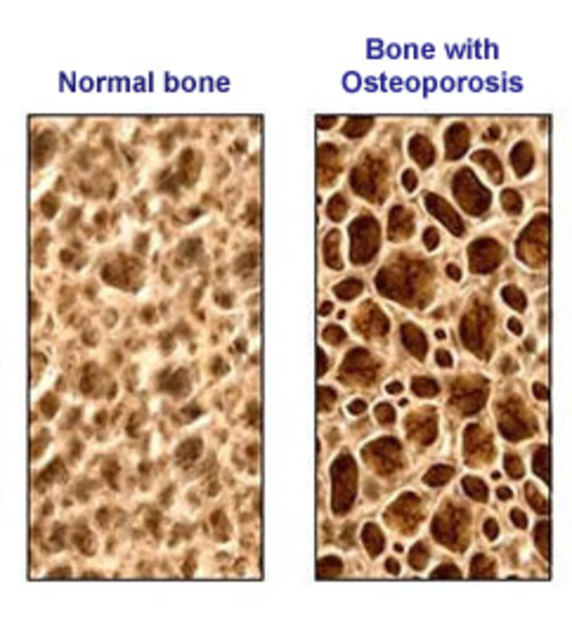Normal Bone and bone with osteporosis.