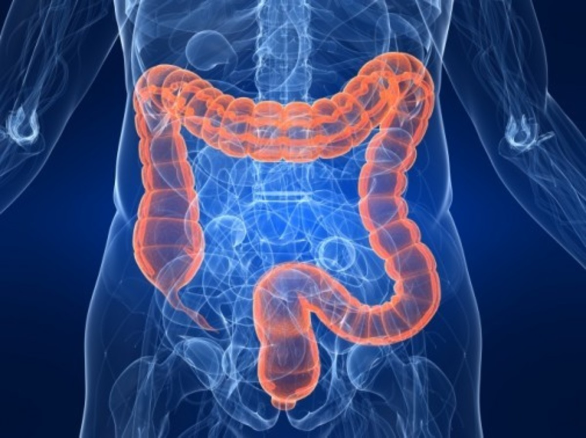 Colon Cancer is Preventable with a Colonoscopy