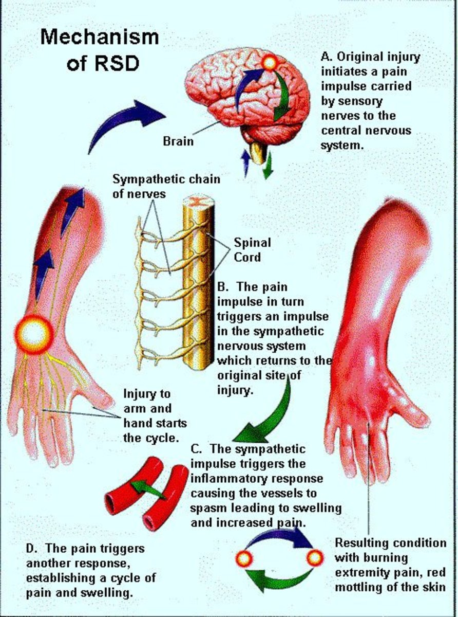 Mystery Diagnosis: Rsd - Reflex Sympathetic Dystrophy and Crps - Complex Regional Pain Syndrome