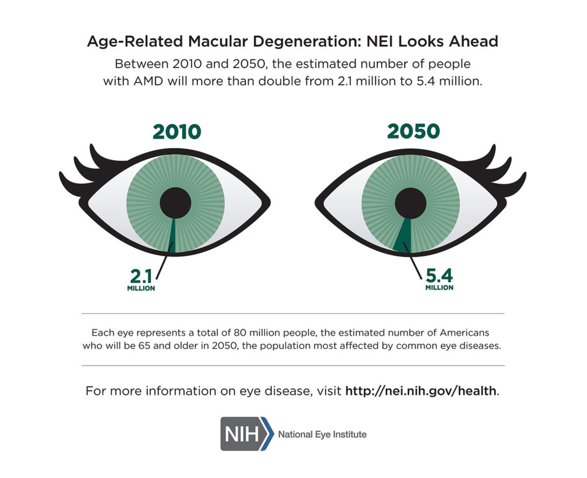 The cases of macular degeneration is on the rise.