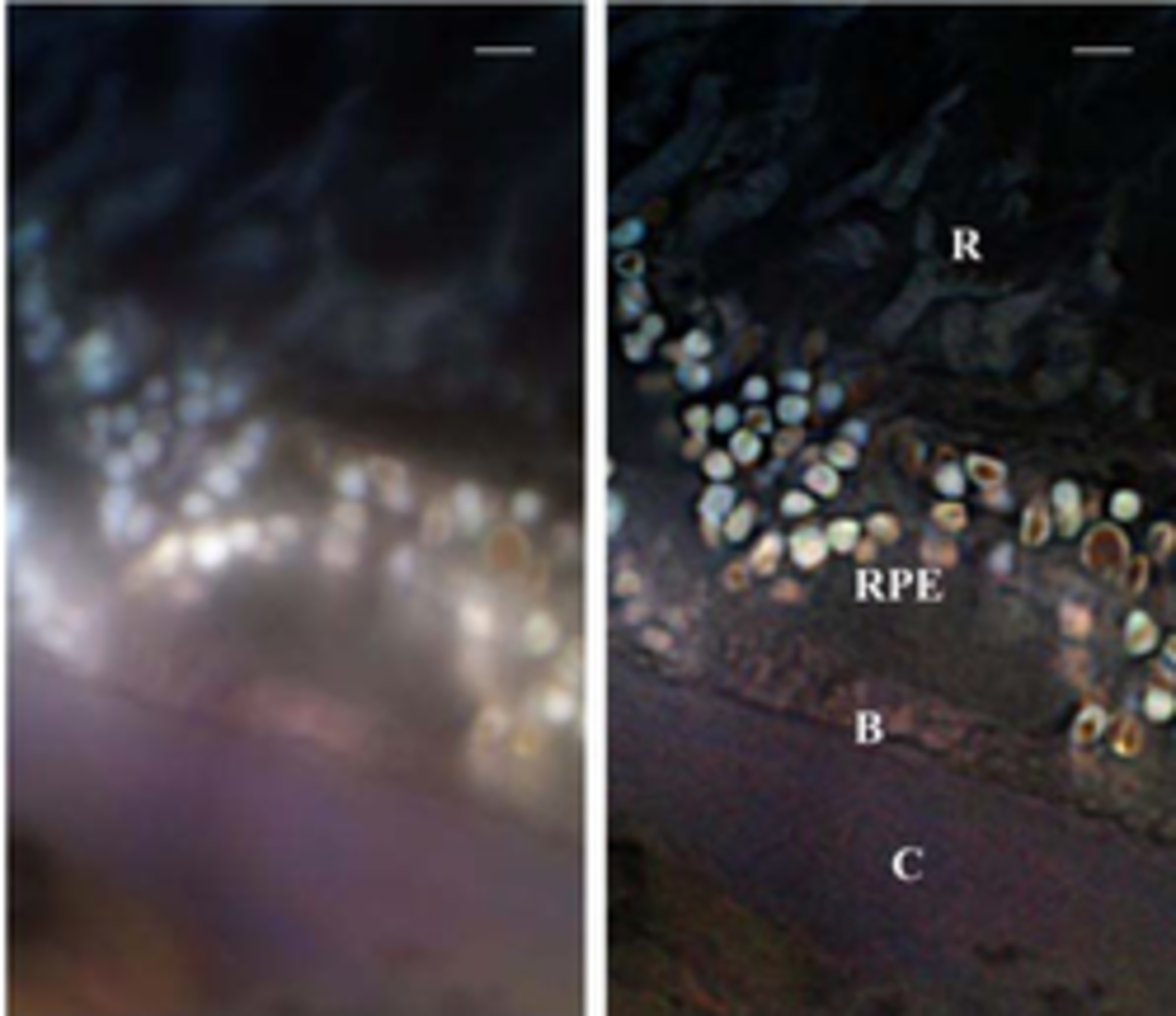 Microscopic view of effect of Macular Degeneration.