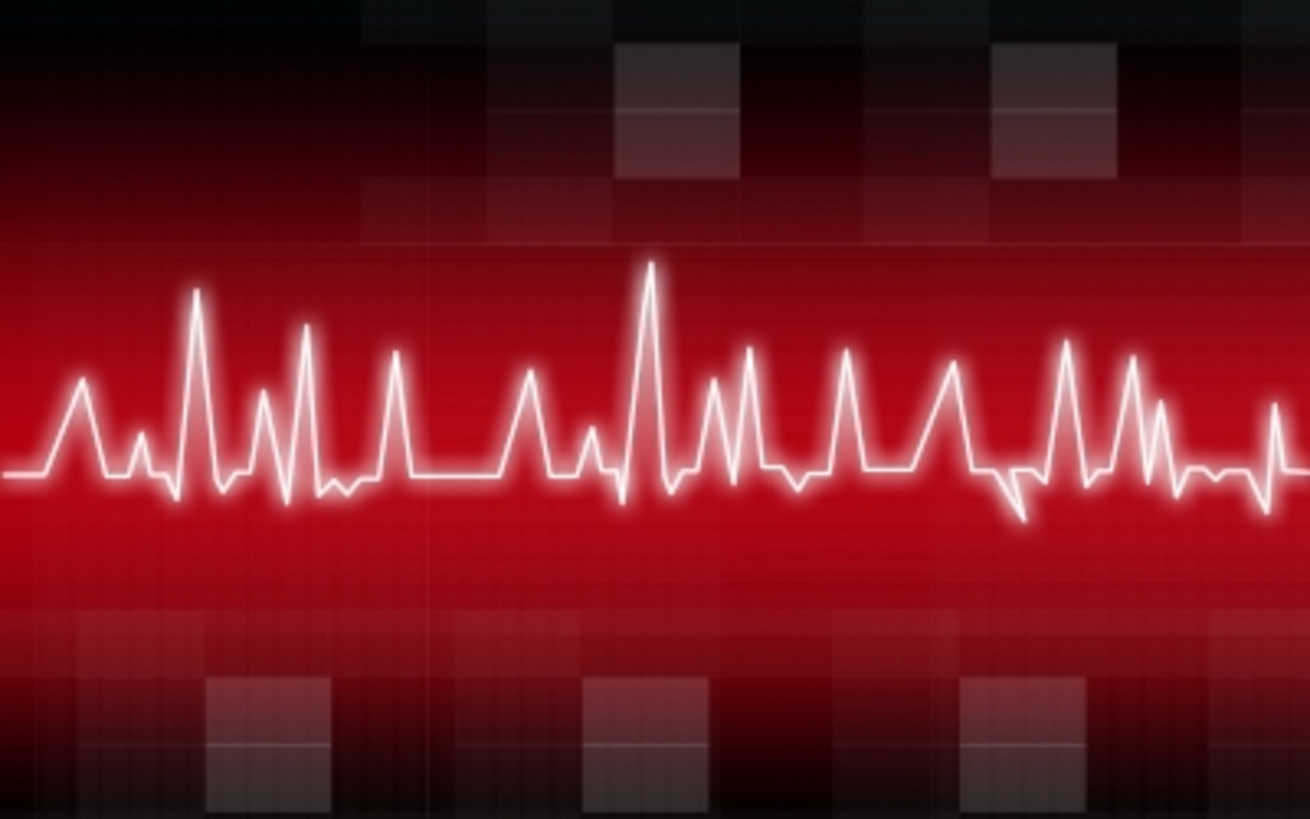 When taking clozapine, it is important to have your heart monitored regularly.
