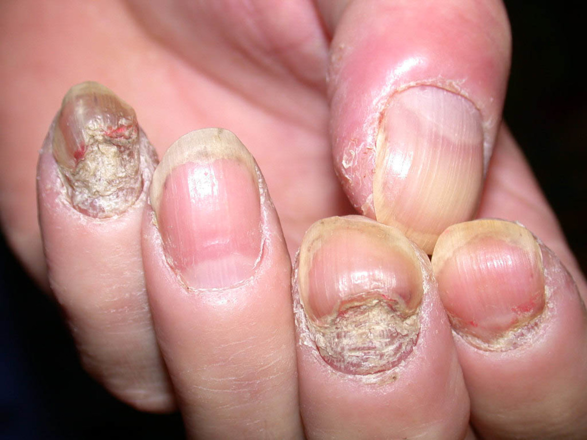 "Toxins and impurities backed up in a ""traffic jam"" trying to escape via keratin in fingernails."
