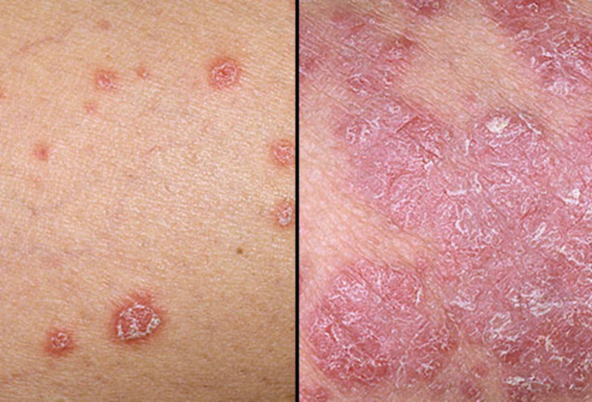 if you can stomach it examine psoriasis photos and take note of the total absence of follicles probably due to modern chemical defoliation.