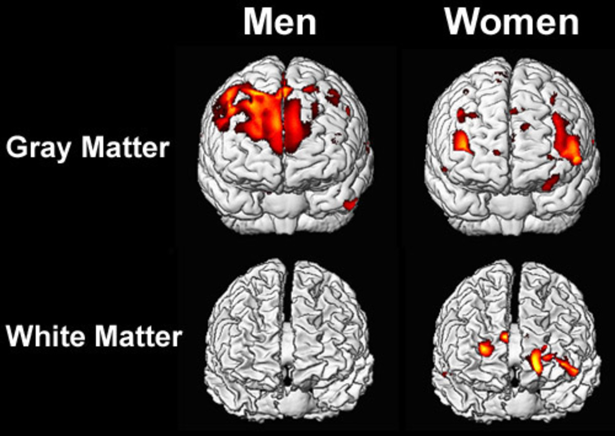 Hypothalamus of men vs. Hypothalamus of women