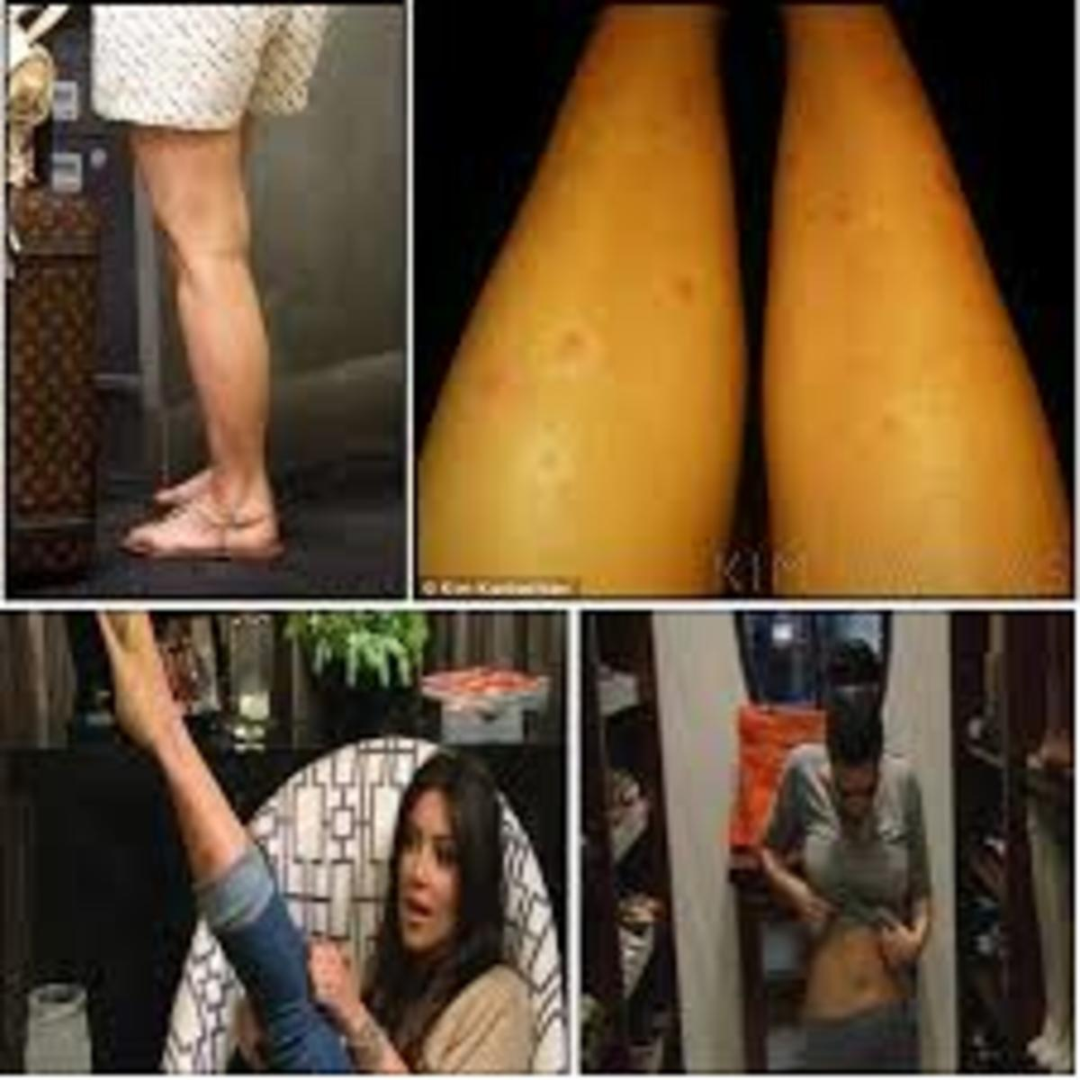 700 × 700 Search by image Kim Kardashian Could Have Cured Her Psoriasis If She Only Knew How – Click Here to Find Out. Kim Kardashian has Psoriasis