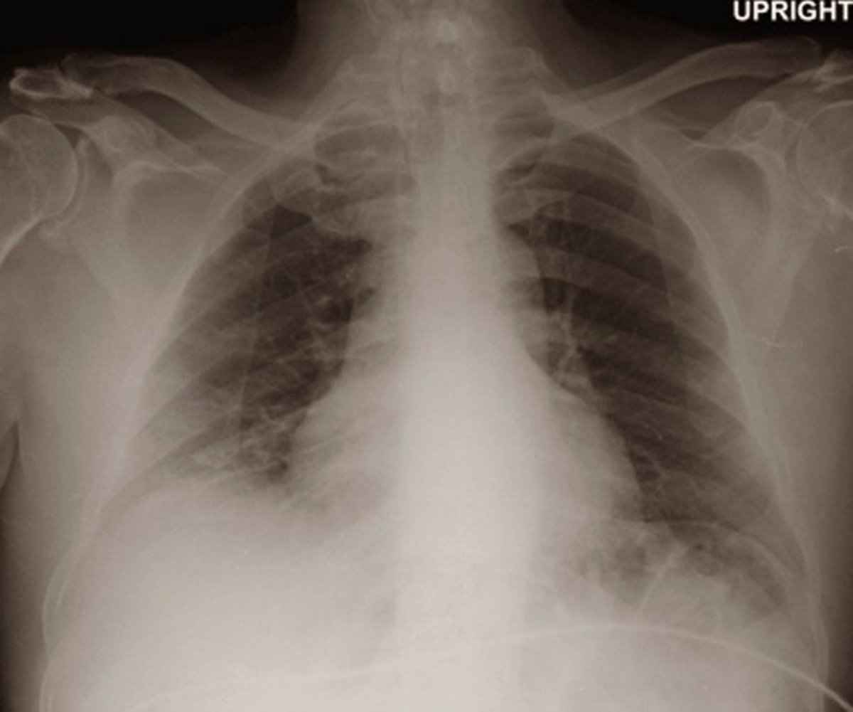 bibasilar-atelectasis-symptoms-treatment-causes-pictures