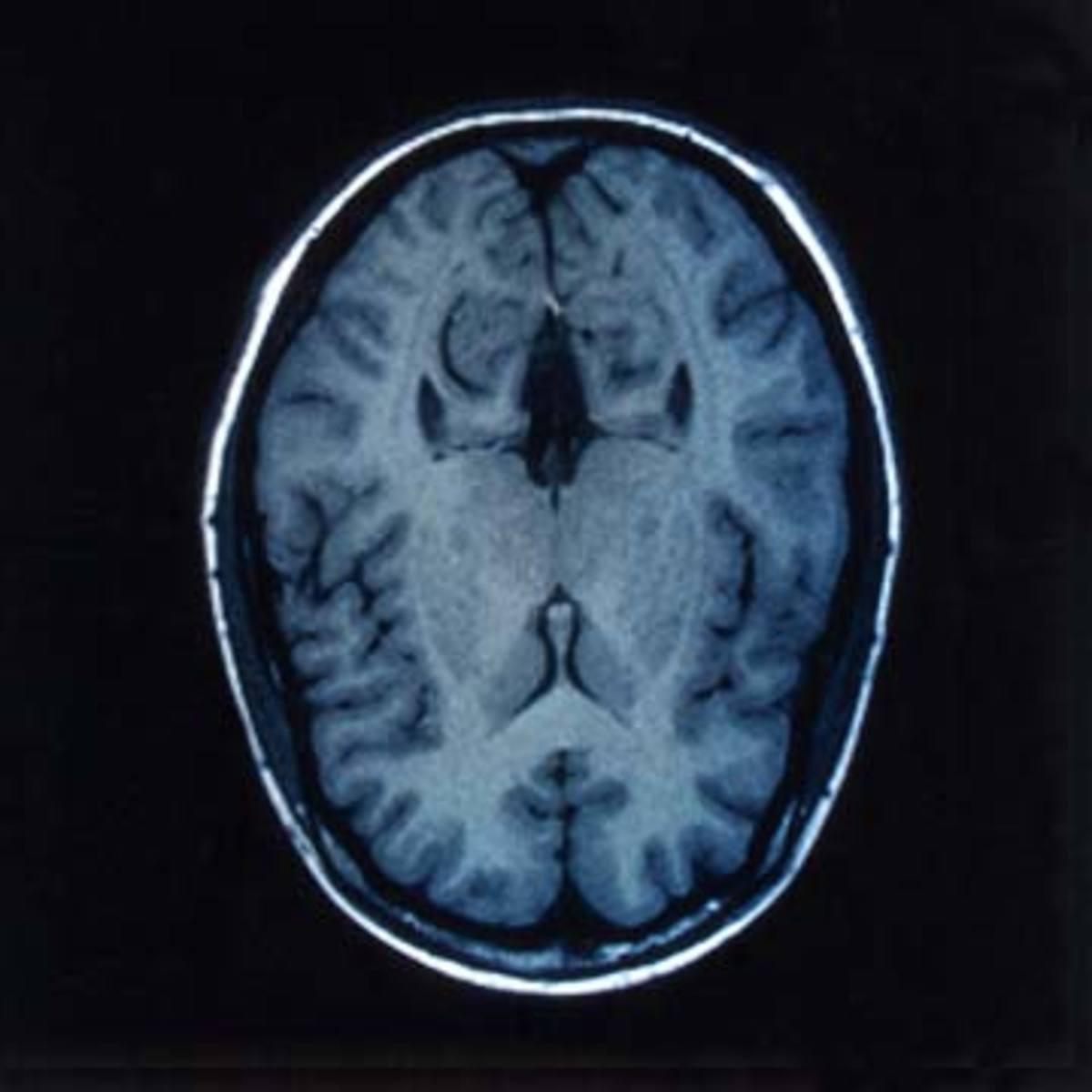 An MRI brain scan image
