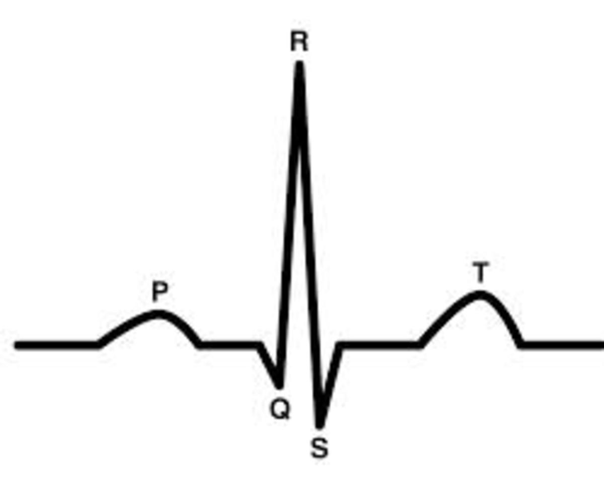 The pattern of an electrocardiogram of a human has more peaks before and after the major peak.