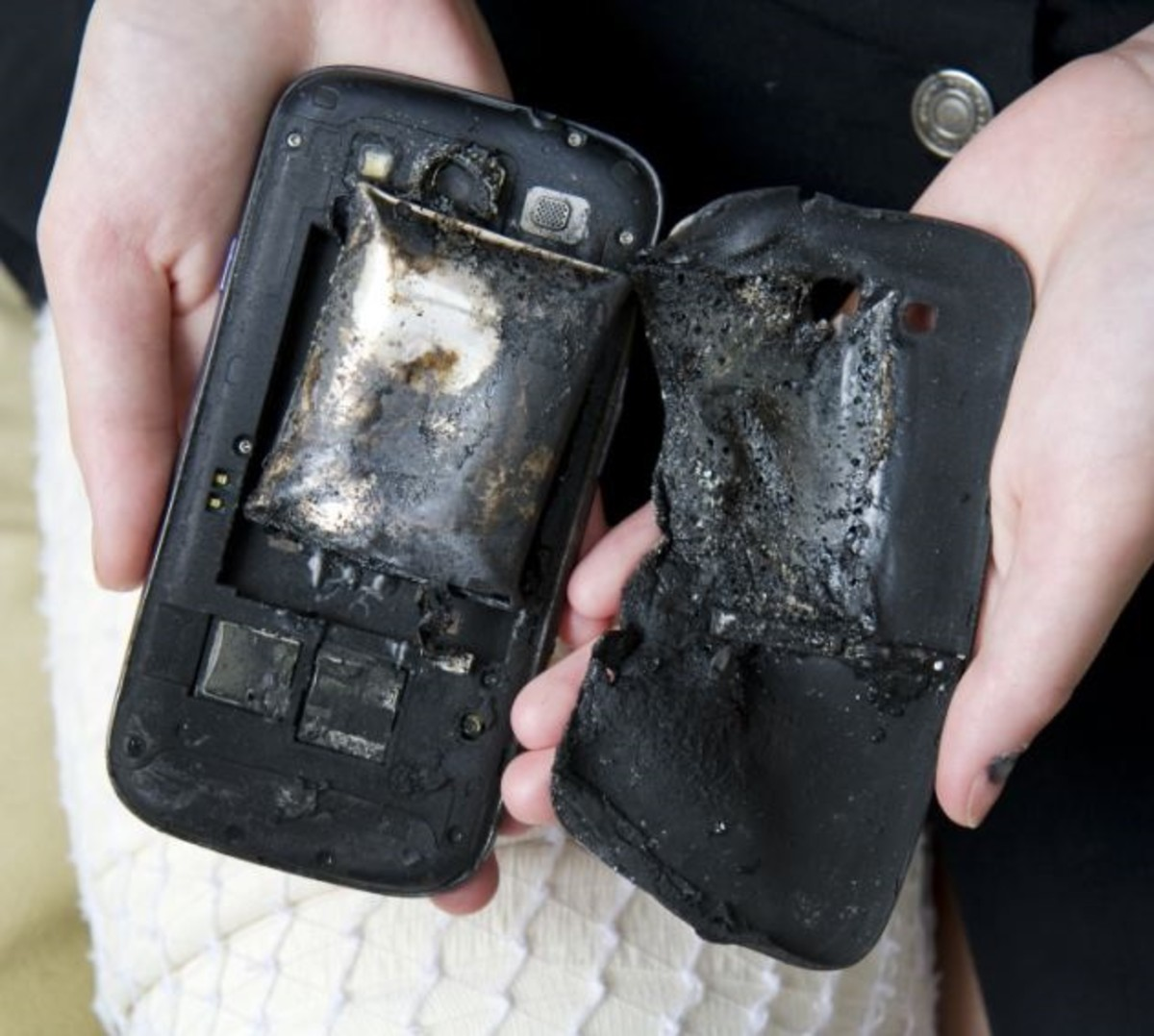 A Swiss teenager suffered burns when her smartphone apparently exploded in her.