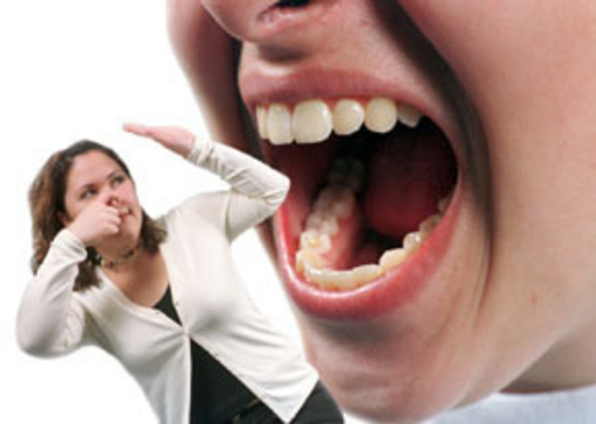 halitosis-oral-malodour-teeth