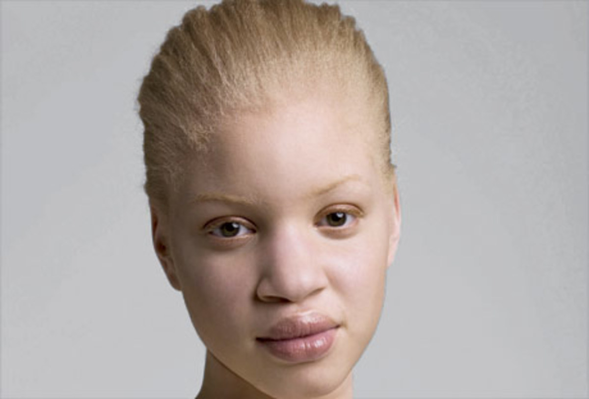 Note: I am not confirming that albinism is leprosy. This picture is used just to address the argument they use.