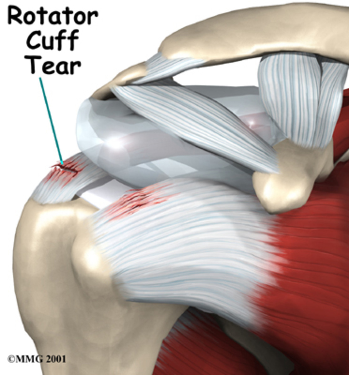 How to strengthen the rotator cuff muscles with exercises