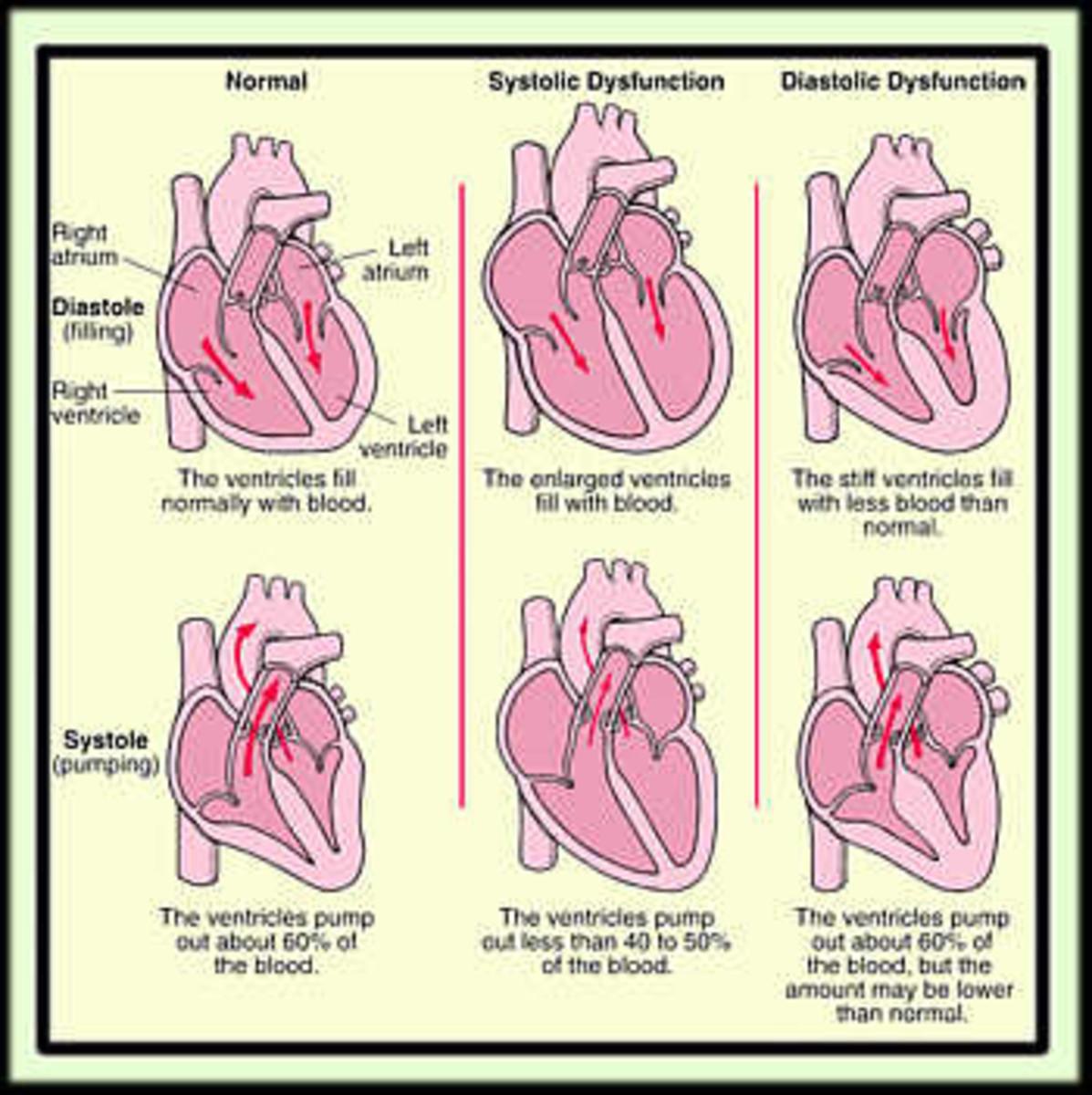 heart-failure-congestive-heart-failure