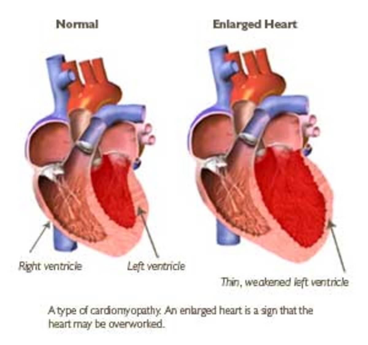 Heart Failure. Congestive Heart Failure.