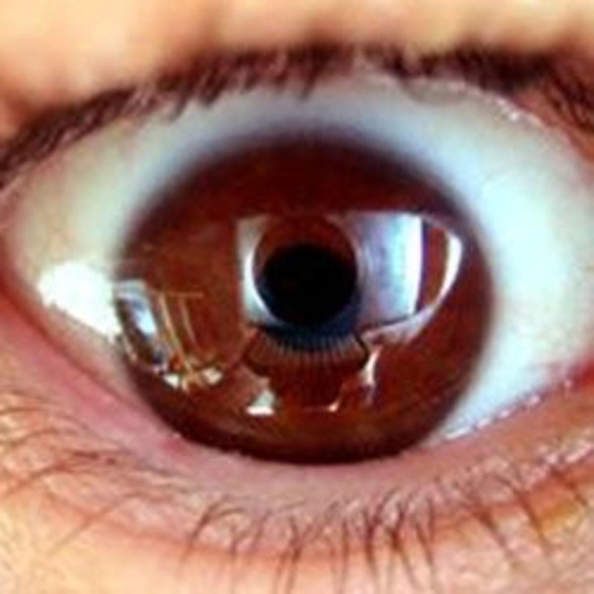 An upside-down eye