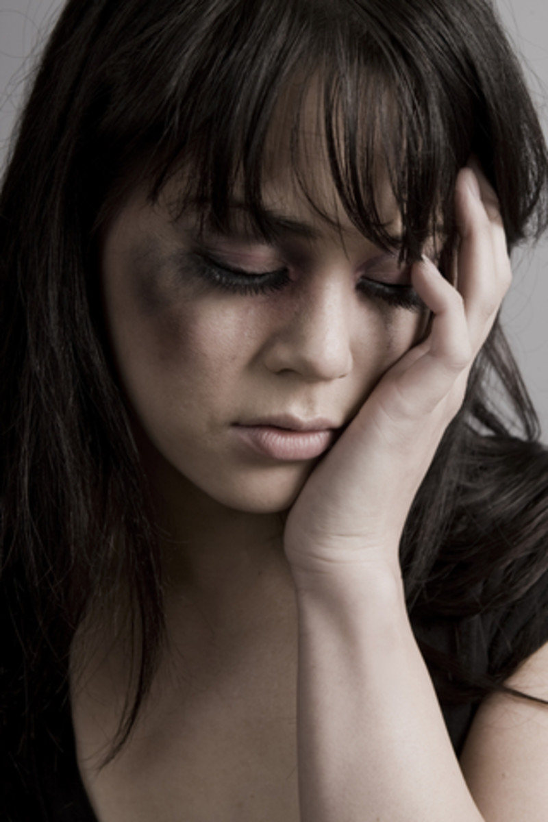 What You Should Know About Domestic Physical Abuse