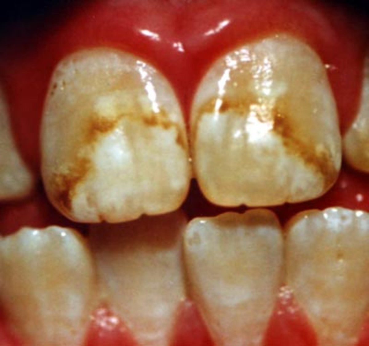 why-is-fluoride-bad-for-you