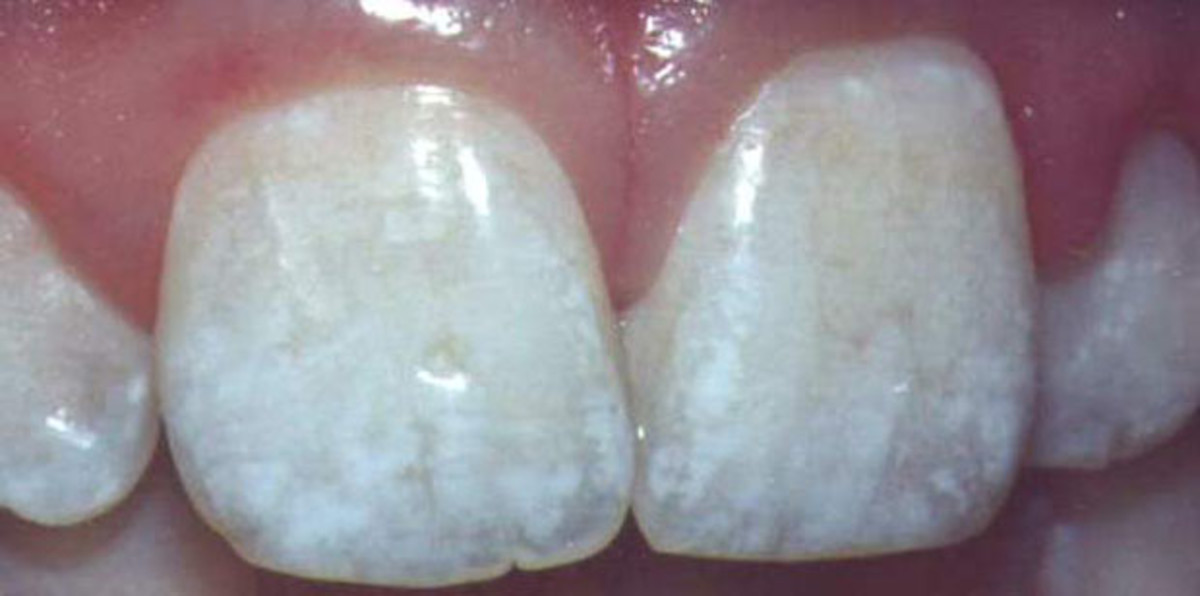 Dental fluorosis is a reflection of what's happening in our     bones and is the first visible sign of fluoride poisoning         Picture courtesy of http://www.fluoridation.com/teeth.htm
