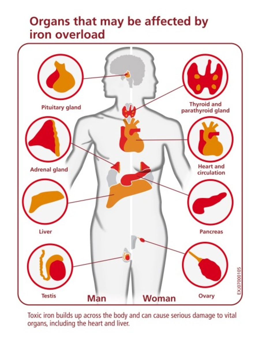Organs that may be affected by iron overload