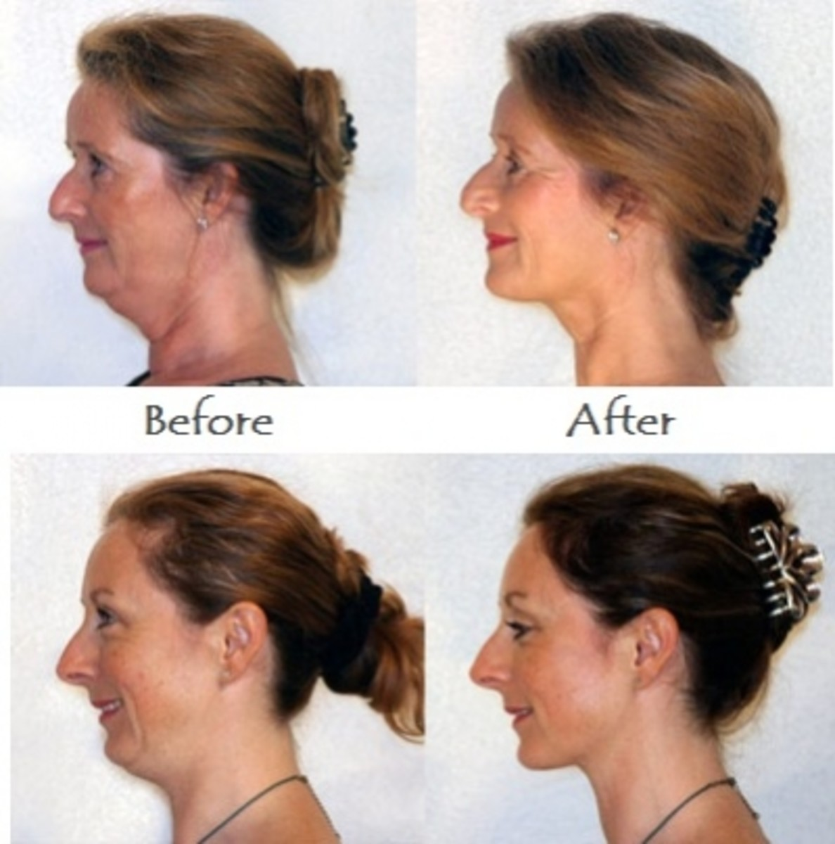 Neckline Slimmer Before and After Photos