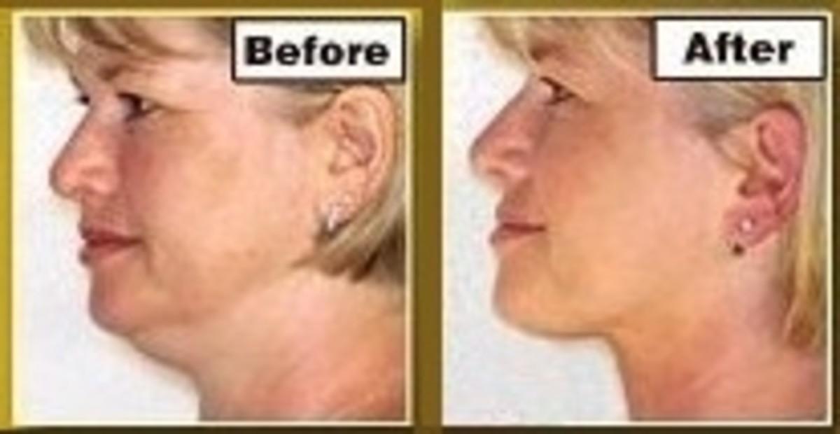 Neckline Slimmer Before and After