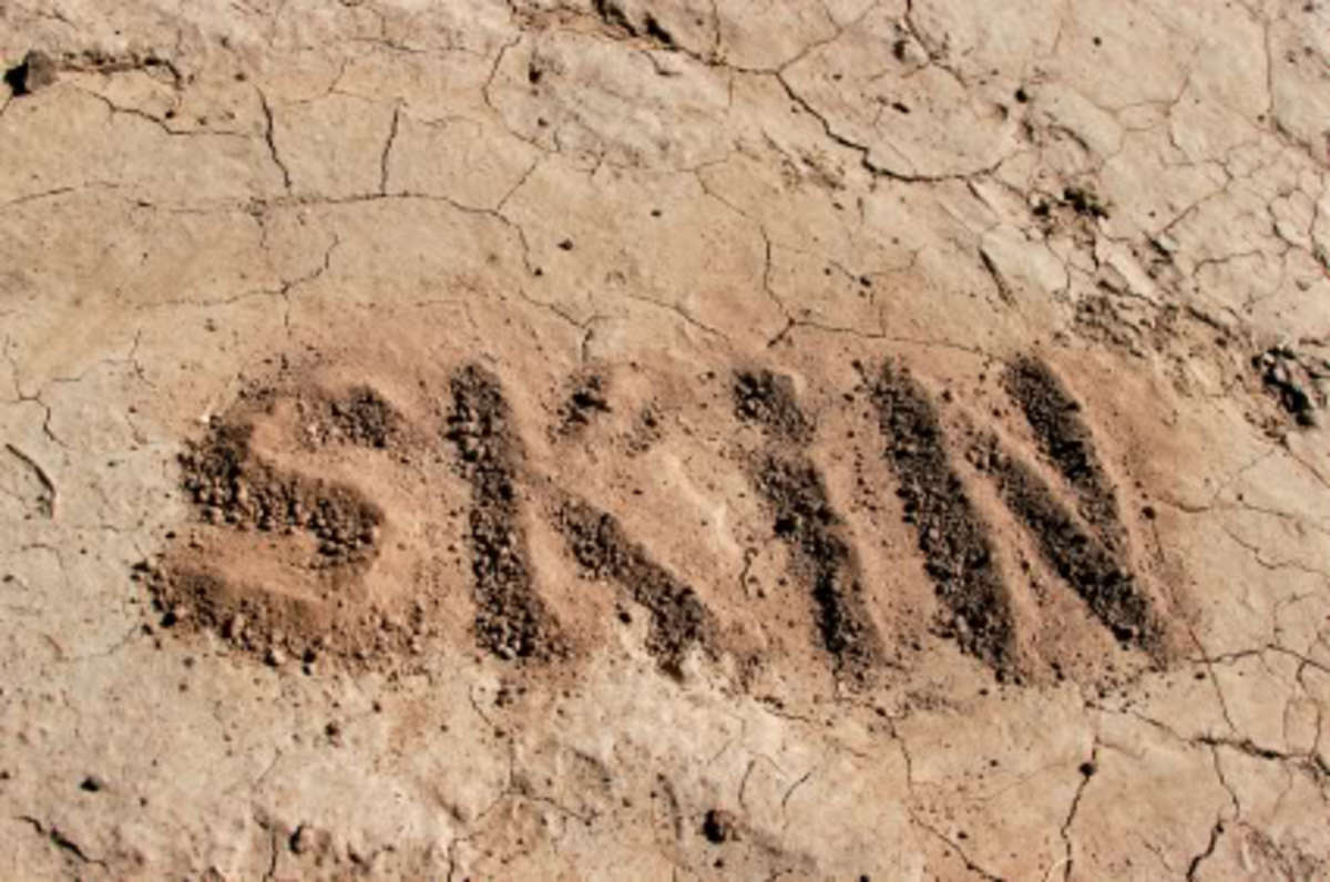Don't let the signs of dry skin go untreated.