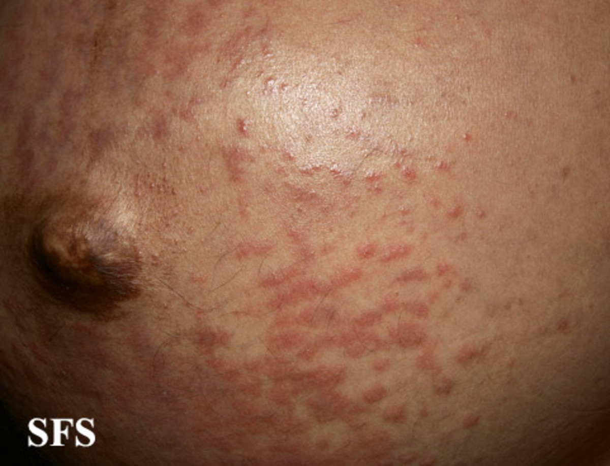 Pruritic Urticarial Papules And Plaques Of Pregnancy (PUPPP)