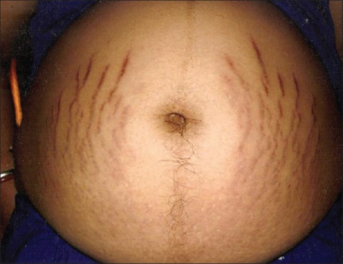 Stretch marks (Striae gravidarum)