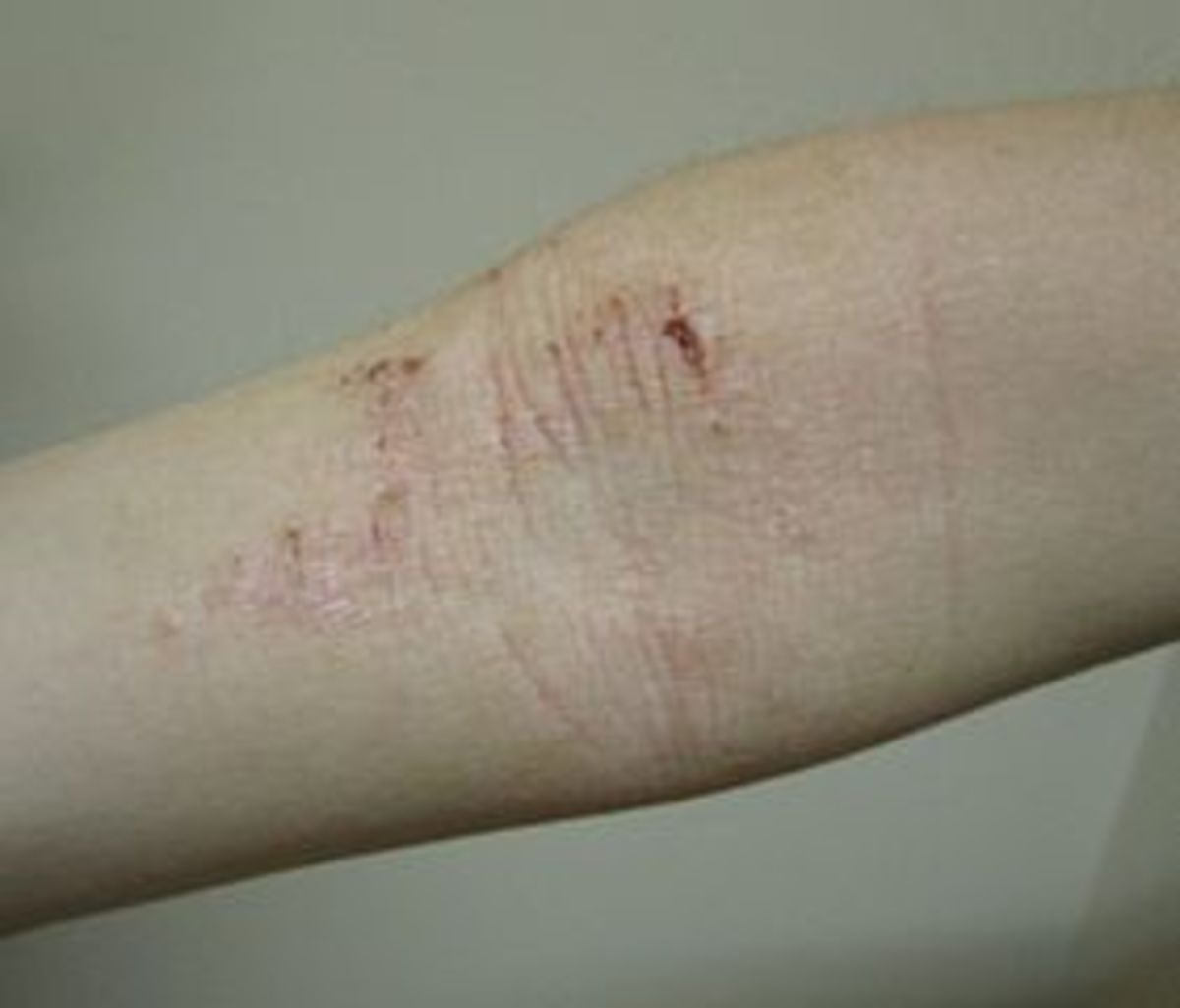 Atopic dermatitis (eczema) on the inside of the elbow