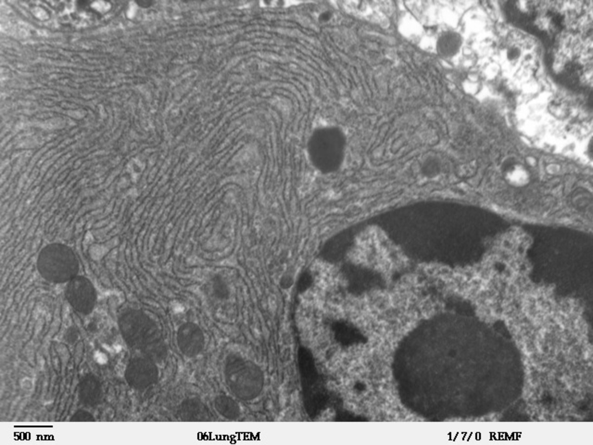 Endoplasmic reticulum are usually found around the nucleus. If you look closely you can see the tiny ribosomes studding the surface, making this Rough ER